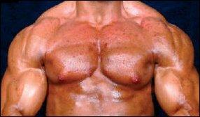 testosterone medicines