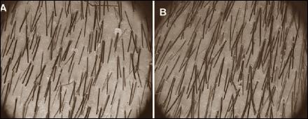 carnitine and hair loss