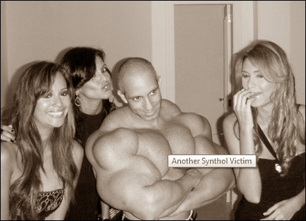 Synthol demolishes muscle tissue